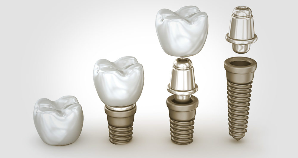 alexmit161200103.jpg - tooth implants set isolated on white background 3d illustration